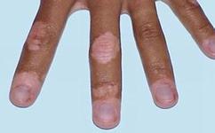 手部白癜风病因都有哪些